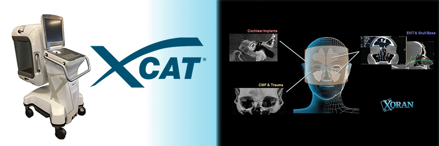 Photo de XORAN xCAT Scanner Humain
